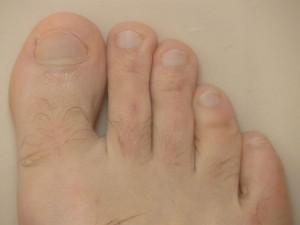 Wie man die Fußpilz Behandlung effektiv unterstützt
