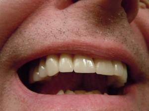 Unser Tipp für strahlend weiße Zähne